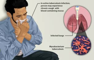 Tuberculosis common among people in crowded and poorly ventilated areas – Doctor Farayola