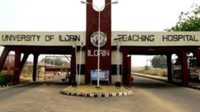 Ilorin Teaching Hospital separates conjoined twins
