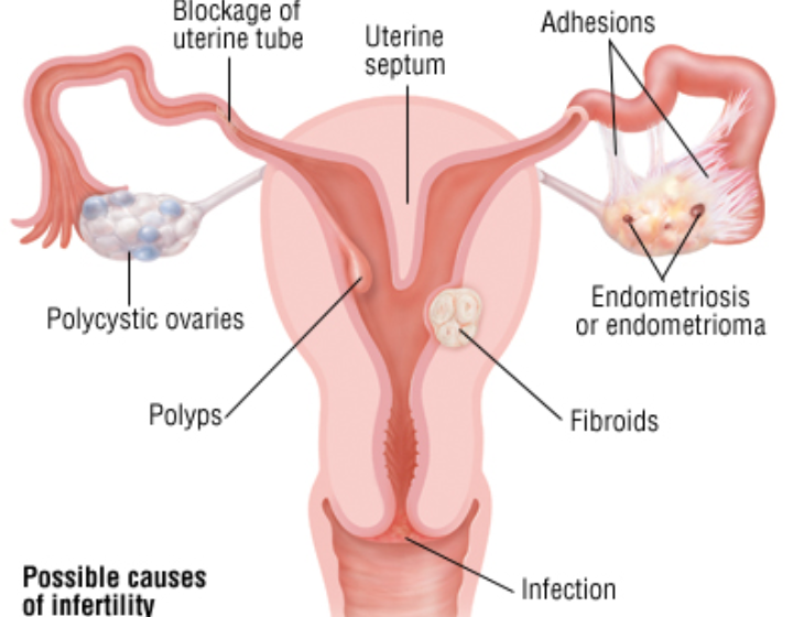 PCOS is a commonest cause of infertility in women – Dr Giwa