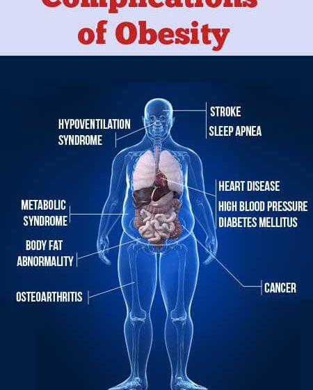 Medical expert lists ways to control obesity